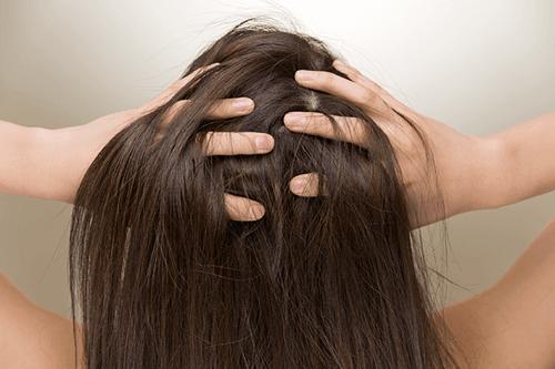 産後 抜け毛 ハゲ 予防 対策